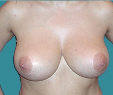 Breast lift - Breast lift - After