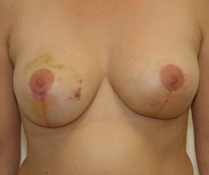 Breast lift - Mamopexie - After 1 month