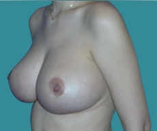 Breast lift - Breast lift - After 2 months
