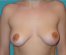 Breast lift - Breast lift - After 10 months