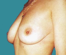 Breast lift - 23 years old patient, 2 pregnancies - mastopexy - After