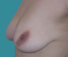 Breast lift - Breast lift - After 7 months
