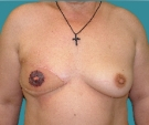 Breast reconstruction - Right breast reconstruction with rotated flap on a 48 years old patient - After