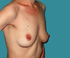 Breast reconstruction - Bilateral breast reconstruction with McGhan 345g implant on a 34 years old patient - After