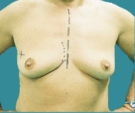 Breast reconstruction - Right breast reconstruction with rotated flap on a 48 years old patient - Before