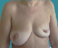 Breast reconstruction - Left breast reconstruction with McGhan 400g implant and right breast mastectomy on a 46 years old patient - After