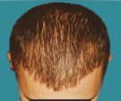 Hair transplant - Hair transplant, result after 2 sessions - After 3 months after the second transplant