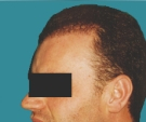 Hair transplant - Hair transplant, result after one session - After 3 months
