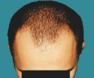 Hair transplant - Hair transplant, result after 2 sessions - Before