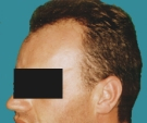 Hair transplant - Hair transplant, result after one session - Before