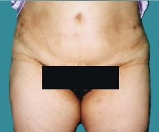 Liposuction - 37 years old patient, liposuction abdomen - After 1 month