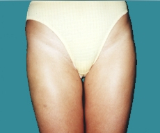 Liposuction - 29 years old patient, liposuction inner+outer thighs and hips - After 6 months