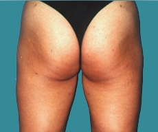 Liposuction - 36 years old patient, liposuction inner and outer thighs - After 4 months