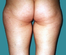 Liposuction - 30 years old patient, liposuction inner and outer thighs - After 3 months