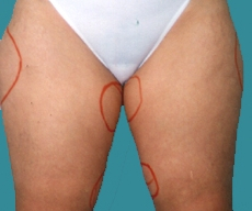 Liposuction - 31 years old patient, liposuction inner and outer thighs - After 8 months