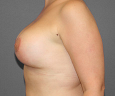 Breast lift with implants - Pacienta de 40 de ani, mamopexie cu proteze Mentor rotunde 300 g - After 1 month