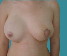 Breast lift with implants - Poland syndrome, right breast 300 round implant, left breast Mammopexia - After
