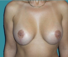 Breast lift with implants - Breast lift with Mentor 270 implants - After 6 luni