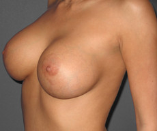 Breast lift with implants - Pacienta de 25 de ani, mamopexie cu proteze Mentor rotunde 350cc, subpectoral - After 3 months