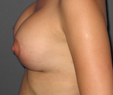 Breast lift with implants - Pacienta de 27 de ani, mamopexie cu proteze Mentor rotunde 300cc, subpectoral - After 1 month