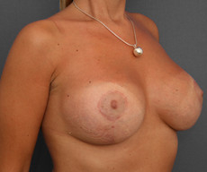 Breast lift with implants - Pacienta de 35 de ani, mamopexie cu proteze Mentor rotunde 300cc, hipotrofie mamara - After 3 months
