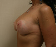 Breast lift with implants - Pacienta de 45 de ani, mamopexie cu proteze Mentor rotunde 300cc, subpectoral - After 3 months