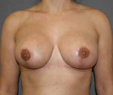 Breast lift with implants - Pacienta de 32 de ani, mamopexie cu proteze Mentor rotunde 300cc, subpectoral - After 3 months