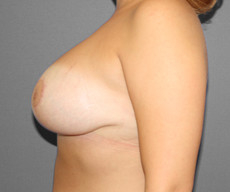 Breast lift with implants - Pacienta de 36 de ani, mamopexie cu proteze Mentor rotunde 275cc, subpectoral - After 4 months