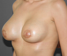 Breast lift with implants - Pacienta de 23 de ani, mamopexie cu proteze Mentor rotunde 345 g - After 1 month