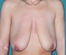 Breast lift with implants - Breast lift with Mentor 315 implants positioned under the pectoral muscle - Before