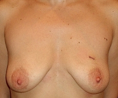 Breast lift with implants - Breast lift with Mentor 280 implants - After 3 months