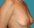 Breast lift with implants - Breast lift with Mentor 280 implants - Before