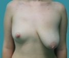 Breast lift with implants - Poland syndrome, right breast 300 round implant, left breast Mammopexia - Before