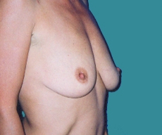 Breast lift with implants - Breast lift with Matrix 320 implants - After 6 luni