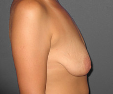 Breast lift with implants - Pacienta de 31 de ani, mamopexie cu proteze Mentor rotunde 325cc, subpectoral - After 3 months