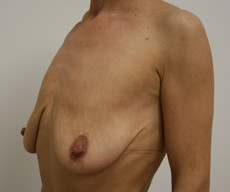 Breast lift with implants - Pacienta de 38 de ani, mamopexie cu proteze Mentor rotunde 250cc, subpectoral - After 3 months
