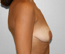 Breast lift with implants - Pacienta de 46 de ani, mamopexie cu proteze Mentor rotunde 250cc, subpectoral - After 1 year