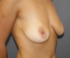 Breast lift with implants - Pacienta de 43 de ani, mamopexie cu proteze Mentor rotunde 250cc, subpectoral - After 1 year