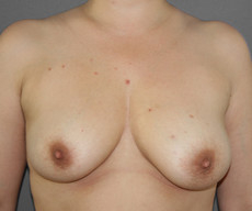 Breast lift with implants - Pacienta de 36 de ani, mamopexie cu proteze Mentor rotunde 275cc sanul stang, 300cc sanul drept, subpectoral - After 3 months