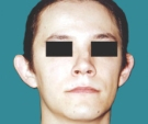 Otoplasty - 17 years old patient - otoplasty - Before