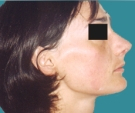 Rhinoplasty - 23 years old patient, rhinoplasty - After 3 months