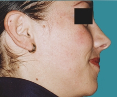 Rhinoplasty - 25 years old patient, rhinoplasty - After 6 months
