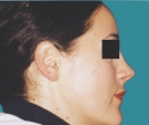 Rhinoplasty - 24 years old patient, rhinoplasty - After 3 months