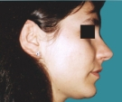 Rhinoplasty - 27 years old patient, rhinoplasty - After 3 months