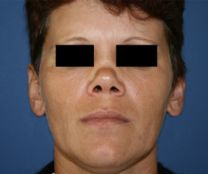 Rhinoplasty - Pacienta de 35 de ani, nas in sa, rinoseptoplastie prin tehnica deschisa, cu grefon costal - After 1 week