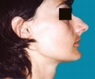 Rhinoplasty - 23 years old patient, rhinoplasty - Before