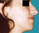 Rhinoplasty - 25 years old patient, rhinoplasty - Before