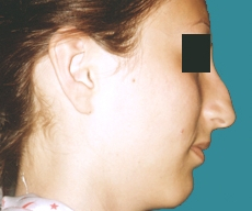 Rhinoplasty - 22 years old patient, rhinoplasty - After 6 months
