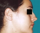 Rhinoplasty - 24 years old patient, rhinoplasty - Before