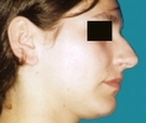 Rhinoplasty - 27 years old patient, rhinoplasty - Before